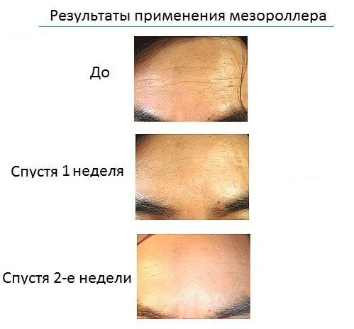 мезороллер для лица до и после