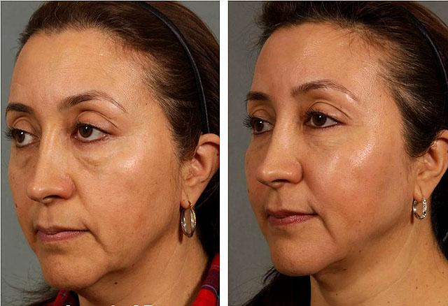 биоармирование лица фото до и после девушка
