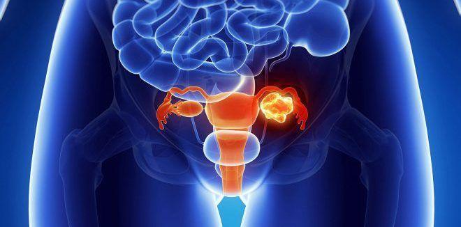 Патологические изменения в органах малого таза