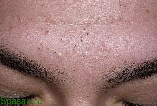 Чистка лица от черных точек