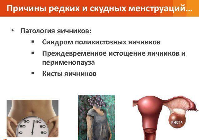 Патология яичников