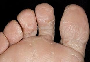 Сухость может указывать на авитаминоз, плохой уход за ногами и грибковые заболевания стоп