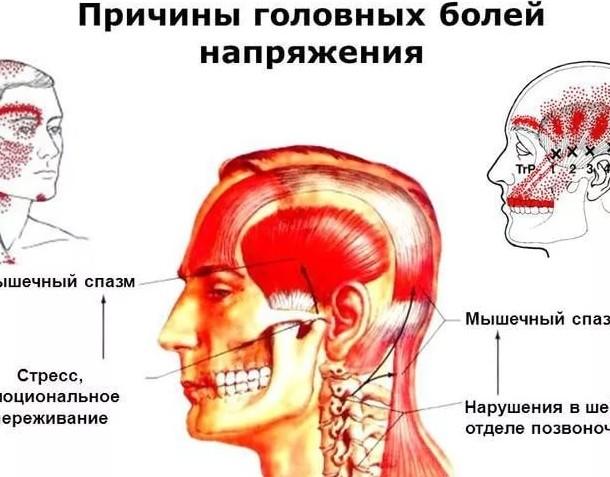 Головная боль и напряжение