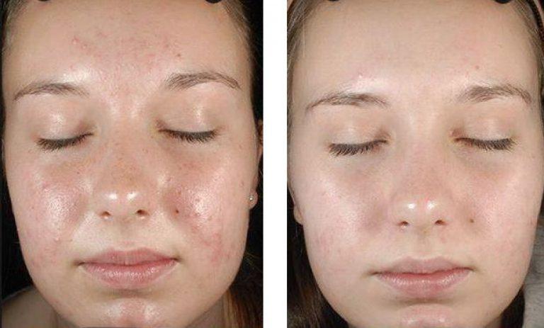 Сайт о красоте и здоровье!,Процедура фруктового пилинга для лица