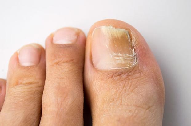 Грибок ногтя не входит в перечень показаний Нитрофунгина