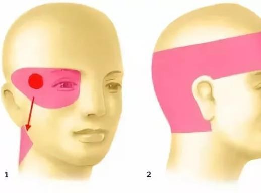 Болит глаз и голова