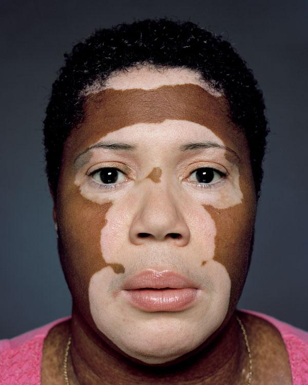 vitiligo-lechenie