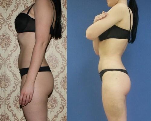 Сайт о красоте и здоровье!,LPG массаж лица и тела