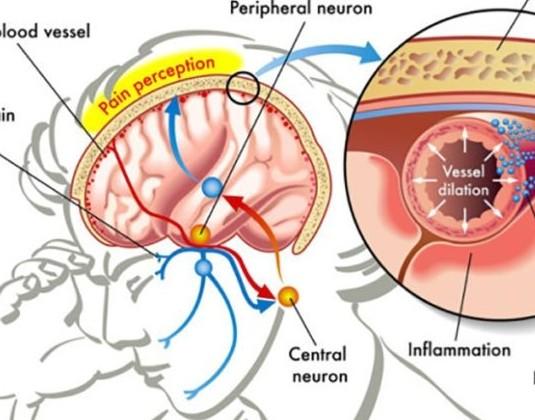 Что помогает от мигрени