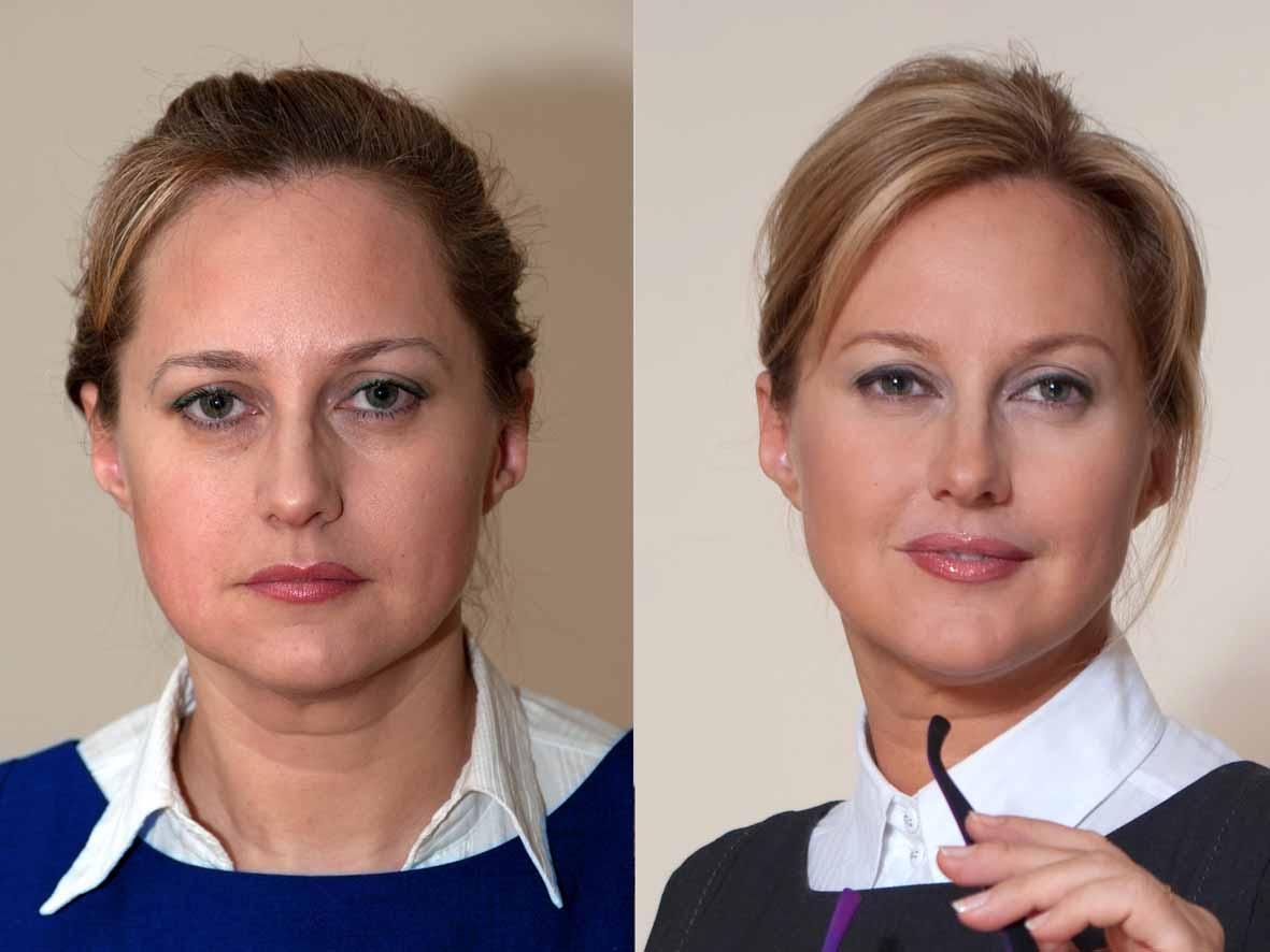 коррекция скул фото до и после еще
